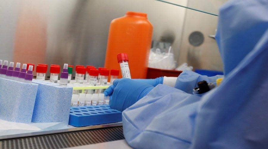 عقار لعلاج الروماتيزم يظهر نتائج واعدة في محاربة كورونا