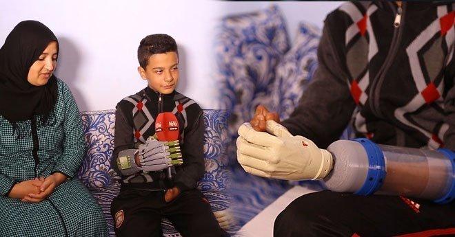 طفل مغربي يحصل على يد اصطناعية ثلاثية الأبعاد بعد 14 عشر سنة من دون أطراف