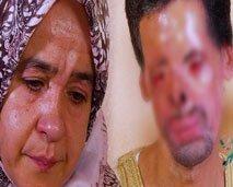 صادم .. شاهد ما ألحقه حادث انفجارقنينة غاز بوجه وجسد محمد