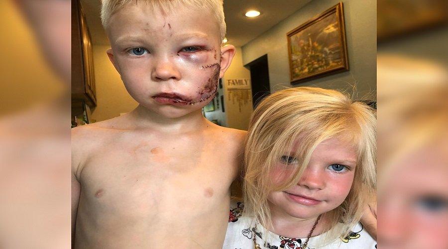 شجاعة طفل في حماية أخته الصغرى من أنياب كلب شرس تكلفه 90 غرزة
