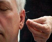 تقنية الوخز بالإبر في الأذن و دورها في معالجة العديد من الأمراض