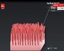 مساحة ضوء يسلط الضوء على مرض السيلياك أو حساسية الجلوتين