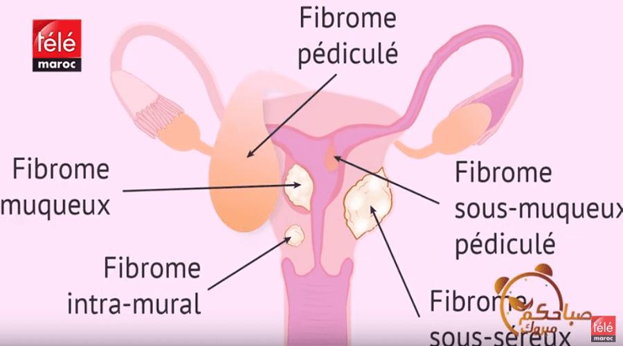 أسباب وأعراض الورم الليفي في الرحم وطرق الوقاية والعلاج مع د مراد يزيد