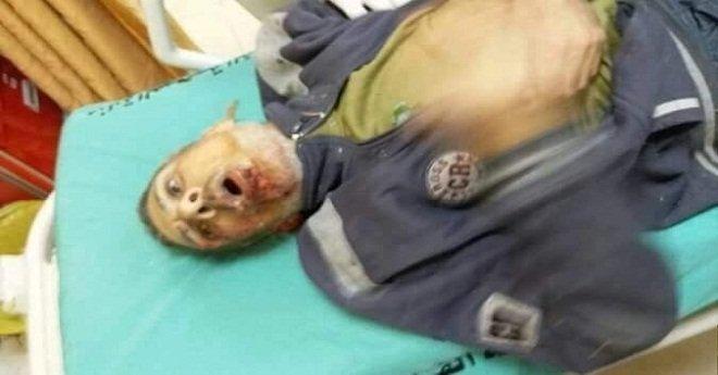 25 مصابا على الأقل في غارات إسرائيلية على غزة