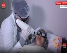 تقنية لإزالة البقع وشد الوجه (ليفيتنغ)