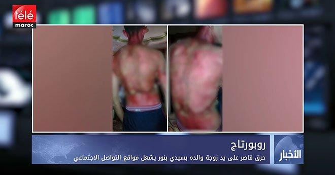 فيديو..حرق قاصر على يد زوجة والده بسيدي بنور يشعل مواقع التواصل الاجتماعي