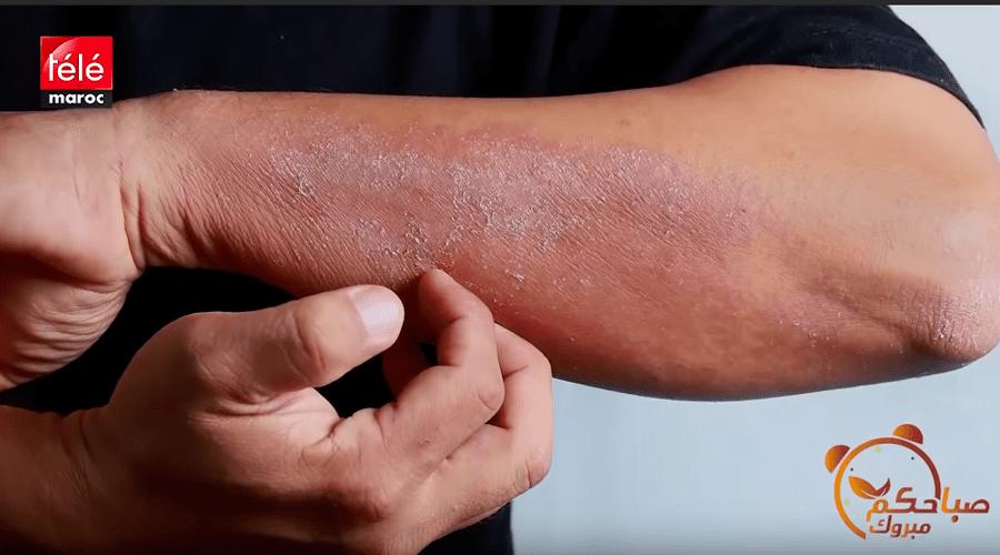 أسباب فطريات الجلد وطرق علاجها مع د سميرة باليماني