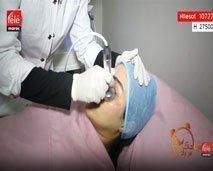 علاج تكميلي بعد إجراء عملية الحقن التجميلي