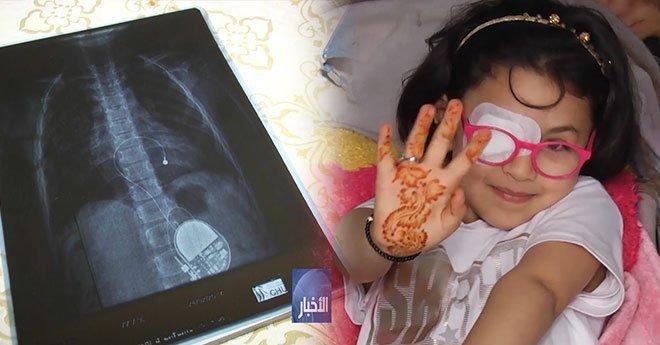 فيديو.. فاطمة الزهراء في ربيعها الخامس تعاني من مرض بالقلب ووالدها يطلب المساعدة