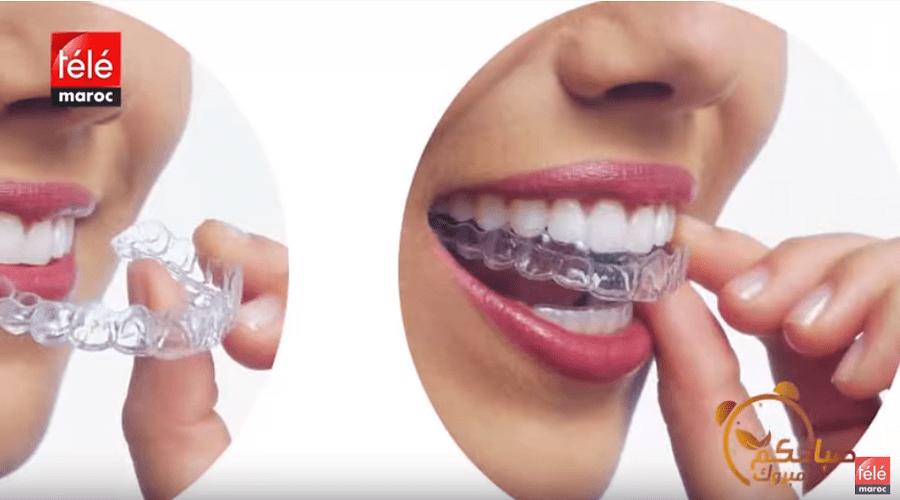 إليك كيفية المحافظة على نتيجة باهرة في علاج تقويم الأسنان