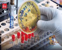 """أسباب مرض """"عدوة الكوليرا"""" وطرق العلاج"""