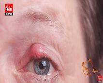 """هذه أعراض وأسباب """"الشعيرة"""" في العين وطرق علاجها"""