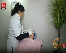 لديك مشكلة الشعر الزائد عن اللزوم ؟ تعرّف على آخر صيحة لإزالة الشعر بالليزر مع الدكتورة إلهام بلهادي