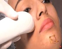 """تقنية تقشير الجلد """"peeling""""غير كيميائي مع إلهام بلهادي"""