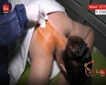 دنيا خلداوي : تعرض أنواع  الحجامة، مزاياها و شروط سلامتها