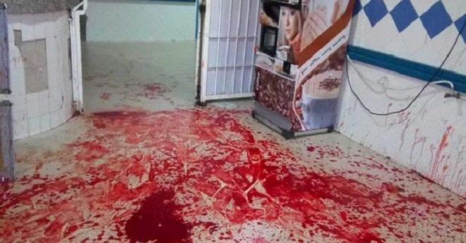 """وزارة الصحة تدخل على خط """"حمام الدم"""" بمستعجلات مستشفى انزكان"""