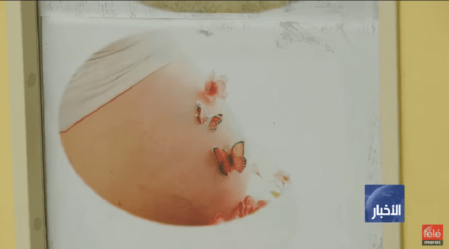 20 في المئة من الأطفال حديثي الولادة يعانون من الهزال