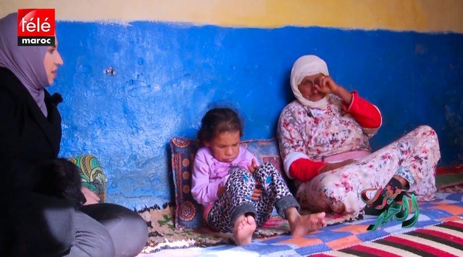 قصة سيدة تعيش في جسد طفلة بسبب مرض قصور الغدة الدرقية