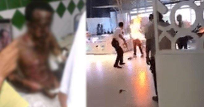 """وفاة الشخص الذي أحرق نفسه في """"مرجان"""" أكادير"""