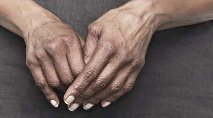 هذه أسباب الروماتيزم وأعراضه وطرق علاجه